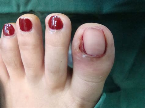 Toenail Separating From Nail Bed by Operative Removal Of Ingrown Toenails How It Is Being