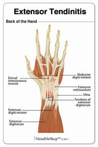 Tendinitis Information And Treatments