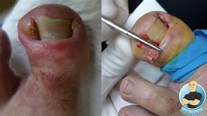 Infected Ingrown Toenail Removal Of Deformed Toenail
