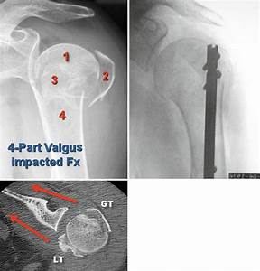 17 (a) Four-part valgus impacted proximal humerus fracture ...