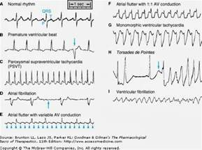 Abnormal Heart Rhythm ECG