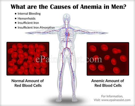 Causes of Anemia in Men, Know its Types, Symptoms, Treatment