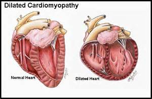 Cardiomyopathy: Causes, Symptoms, Diagnosis, Treatment - Tips Curing ...  Dilated cardiomyopathy Cardiomyopathy