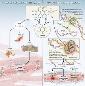 Anthracyclines and Heart Failure | NEJM