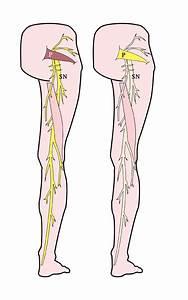 More Info About Sciatica And Piriformis Syndrome