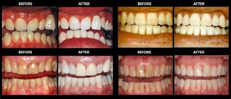 Best Teeth Whitening Kits For 2018 Must Read In Depth Reviews. Umdnj School Of Nursing New Zealand Post Codes. Auto Repair Shops Chicago Massage Schools Nyc. Starting Salary For Mechanical Engineers. Inspirational Quotes Text Messages. Jewelry Stores In Bellevue Seo Content Writer. Help For Mortgage Payments Tours Machu Pichu. Sports Management Degree Description. Breast Augmentation Utah Alabama Pest Control