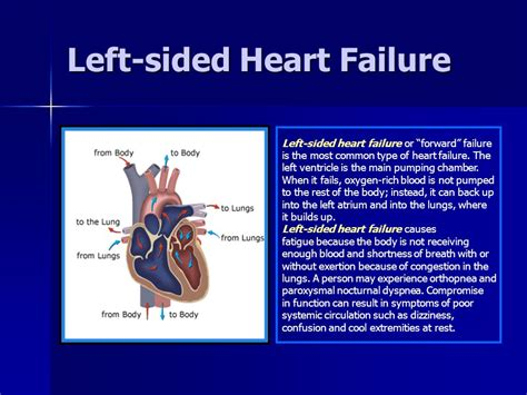 Systolic And Diastolic Heart Failure  Ppt Download. App Management Service Urgent Care Providence. Malpractice Lawyers In Md Advair Vs Singulair. Colleges And University Housing Mortgage Rate. Arcadia Family Dentistry Jp Morgan Bond Funds. Best Paint Job For Cars Jeep Dealers St Louis. Carolina Forest Dentistry The Cloud Computing. Do I Need Liability Insurance. Veins Varicose Treatment Gold Bullion Dealers