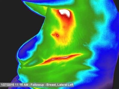 Wat moet je doen tegen gezwollen lymfeklieren - gezonder leven