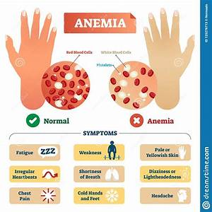 Anemia Vector Illustration  Labeled Scheme With Red Blood Cells  Stock Vector