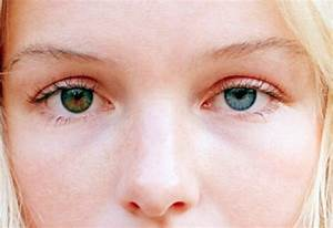 Dreams and Drama: Heterochromia iridis