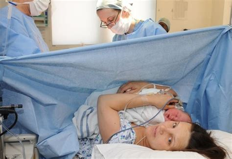 pooping after c section a caesarean everything you need to baby
