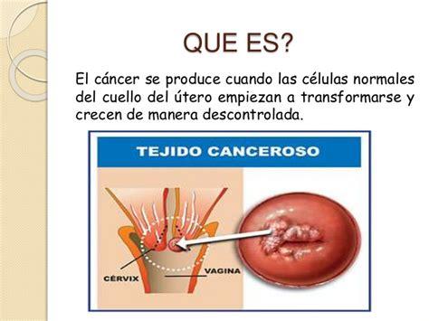 q es el cancer q es el cancer cancer