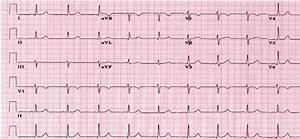 An Example Of Normal Ecg From 6 Leads