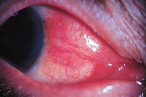 Images For Episcleritis ~ YOUNG DOCTORS' RESEARCH FORUM