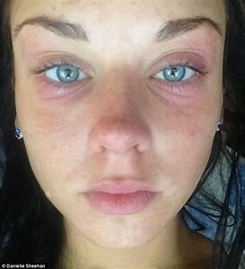Danielle Sheehan's life transformed after Botox eradicates ...