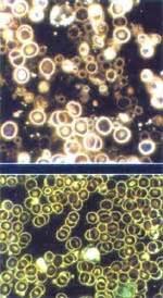 Falsche bakterien im darm