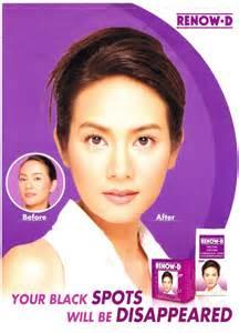 Renow D Facial Cream