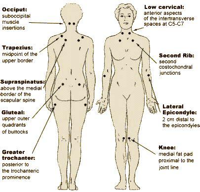 fibromyalgia  neck pain pain neck