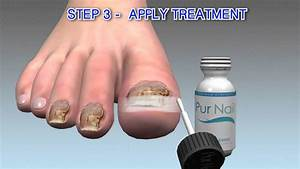 Toenail Fungus Treatment Clear Nails Guide Step Three From