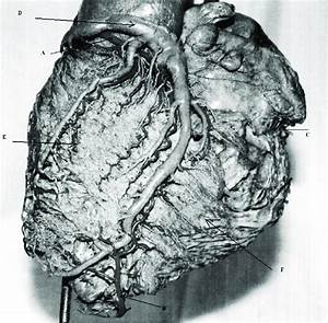 Posterior Aspect Of The Heart  The Left