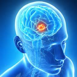 Brain Tumors Killed with Gel-Encapsulated, Herpes-Loaded Stem Cells ... Brain Tumor