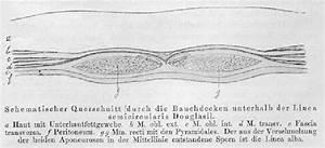Figure From Pfannenstiel U0026 39 S Original Article  1900  Showing