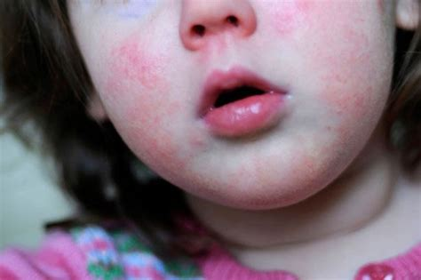 Rise In Scarlet Fever Cases In Uk  Daily Star. Canon Camera Stickers. Neck Cause Signs. Casino Signs Of Stroke. Getting Signs