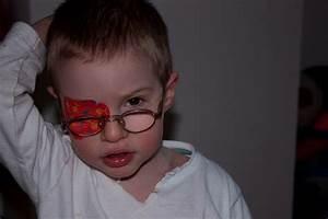 Ocular Albinism - A Few More Steps