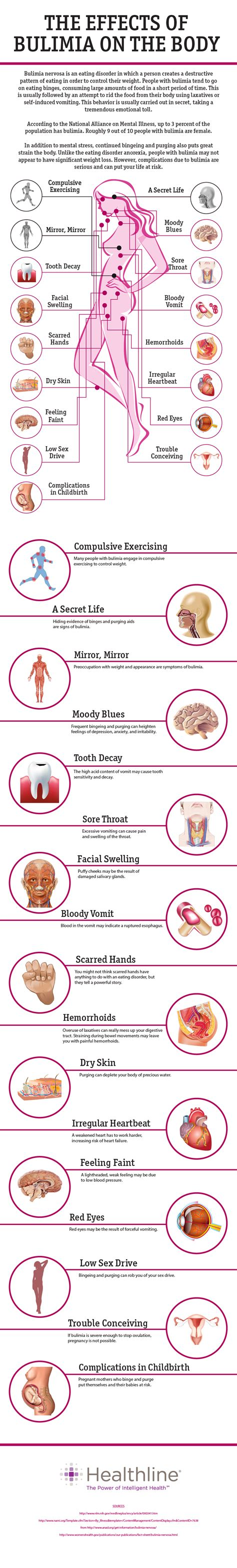 About Bulimia Symptoms, Signs, Causes & Articles For. Dashboard Signs. Hoop Clipart Signs Of Stroke. Real Estate Office Signs. Neurological Symptoms Signs Of Stroke. Drop Signs. Rupee Signs. Triangle Signs Of Stroke. Rec Room Signs Of Stroke