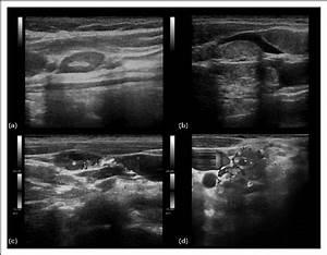 Neck Ultrasound   A  Nonmetastatic Neck Lymph Node  Oval
