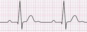 Electrocardiogram  Ecg   Working Principle  Normal Ecg