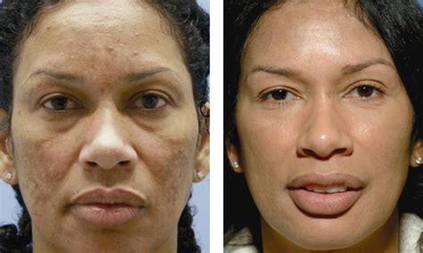 Dermatologist face peel