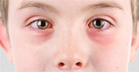 Pink Eye (Conjunctivitis) Treatment - AllAboutVision.com