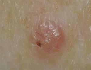 melanoma skin cancer pictures Skin Cancer
