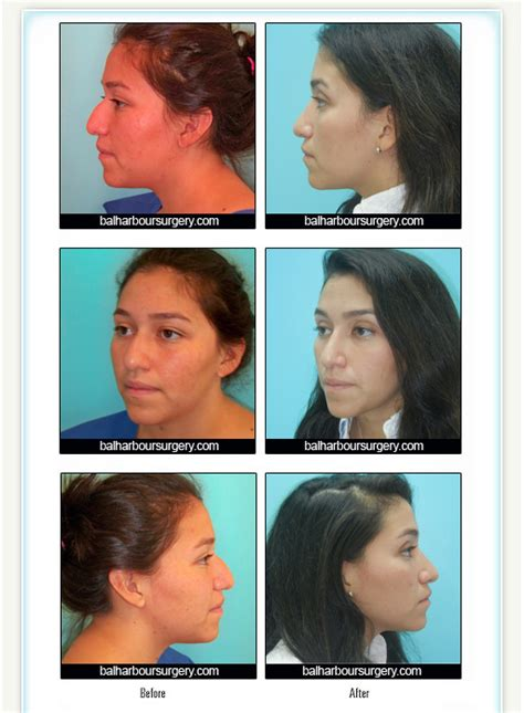 Bal Harbour Plastic Surgery Associates  Before And After. What Is A Public Administration Degree. How To Add Memory To A Macbook Pro. Industrial Cleaning Products Inc. American Red Cross Acls Certification. Columbia School Of Engineering. Free Market Research Surveys. Workbrain Time And Attendance. Homemade French Vanilla Creamer