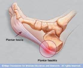 What Does Icd 10 Stand For by Heel Pain Plantar Fasciitis Taping