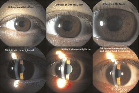 slit l eye exam diy smartphone slit l adaptor journal of mobile