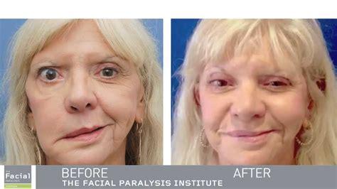 Masseter Facial Nerve Transfer   Expert Facial Paralysis ...