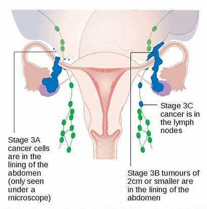 Cancer Ovarian Stage Diagram 3a 3c Svg