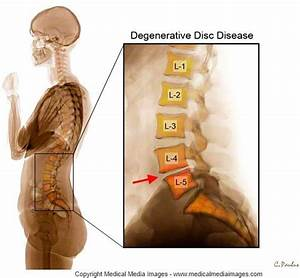 Pin By Medical Media Images On Lumbar Degenerative Disc
