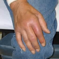 Finger Gout Treatment