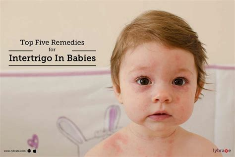 Top Five Remedies For Intertrigo In Babies By Dr Atul