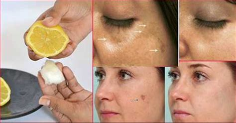 simple and the most effective method to remove spots and acne scars from glowpink