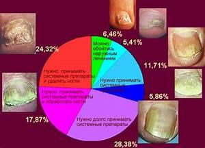 Грибок ногтя на ноге симптомы лечение