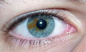 Musings of a Biologist and Dog Lover: Heterochromia: Types ...