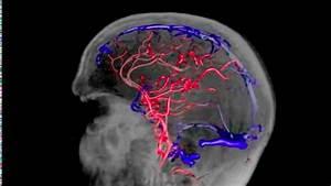 Лечения повышенное давление головного мозга