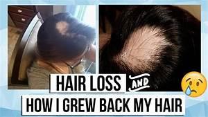 My Alopecia Areata Story Hair Loss Products I Used To