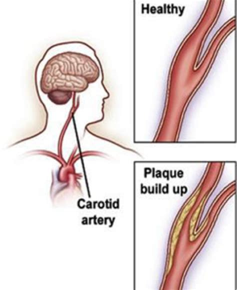 Carotid Endarterectomy & Carotid Stenting  Vascular Care. Stewart Financial Services Mazda Mid Size Suv. Differential Pressure Instruments Inc. Newport Beach Tummy Tuck Health Data Security. Solutions Community Counseling And Recovery Centers. Appliance Repair Tampa Fl Internet Speed Text. Greensboro Laser Hair Removal. Massage School South Florida. Office Furniture High End Hair School Chicago