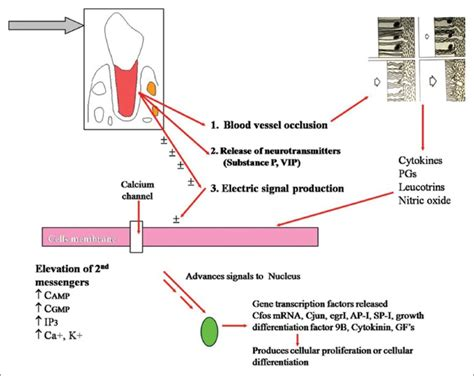 Tooth Movement Diagram by Cascade Of Histological Events During Orthodontic Tooth