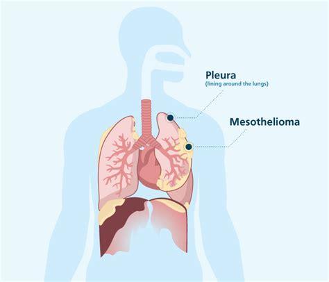 mesothelioma   malignant mesothelioma cancer